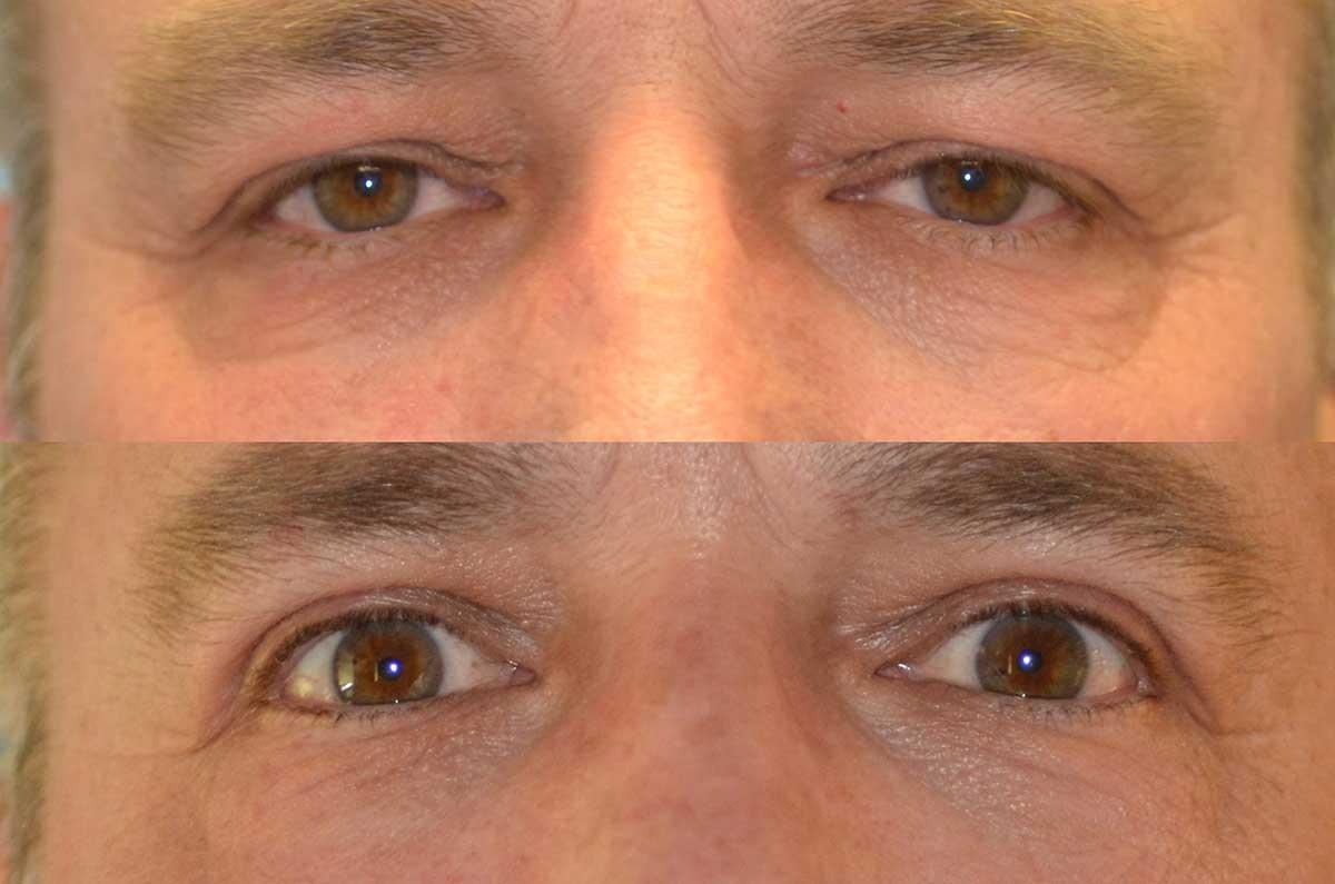 denver eyelid surgery