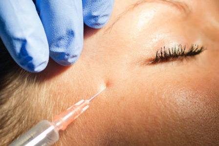 Beauty treatment on woman with botox